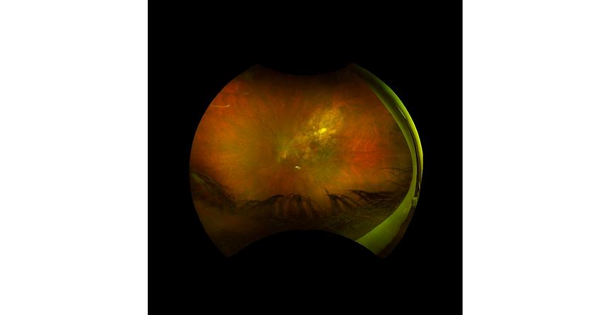 Retina 36-1.png