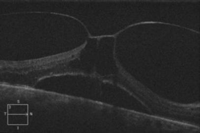 Retina 53-1.png