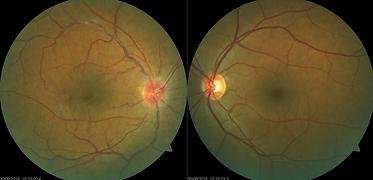 Retina 15-1.png