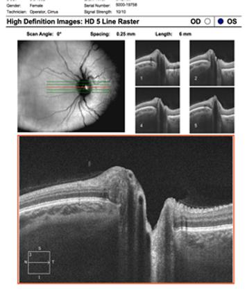Neuro-Ophthalmology 13-4.png