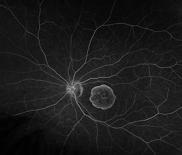 Retina 27-8.png