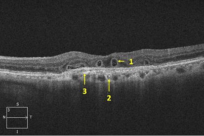Retina 32-4.png