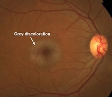 Retina 22-5.png