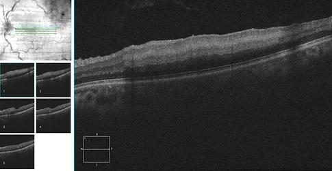 Retina 28-3.png