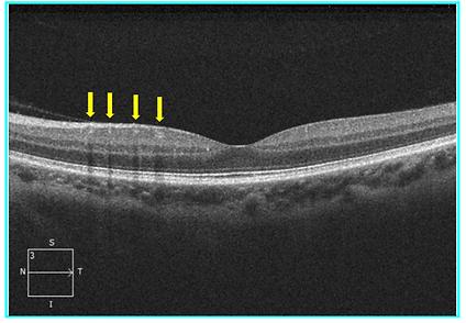 Retina 39-2.png