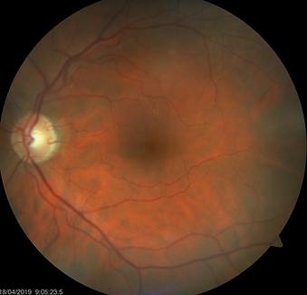 Retina 12-1.png