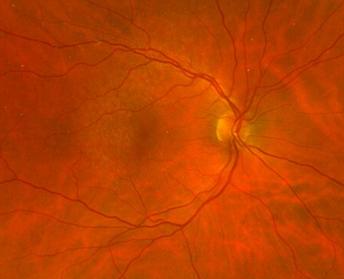 retina56_8.png