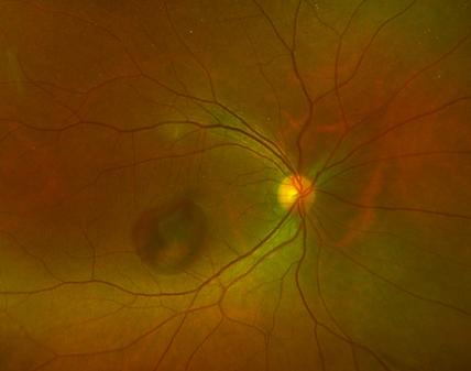 Retina 30-1.png