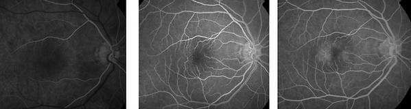 Retina 22-2.png