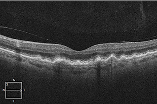 Retina 25-1.png