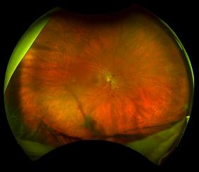 Retina45_2.png