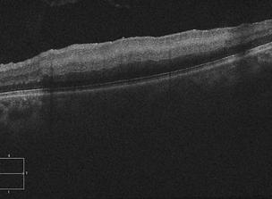 Retina 28-8.png
