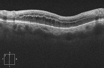 Retina45_6.png