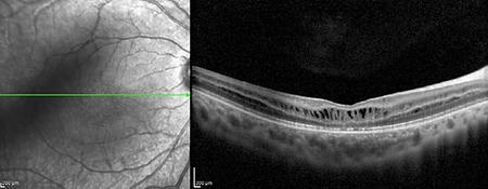 Retina Case 6-1