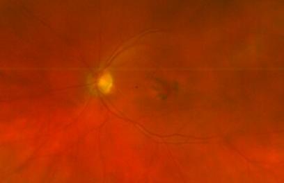 Retina 54-2.png