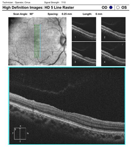 Neuro-Ophthalmology 12-4.png