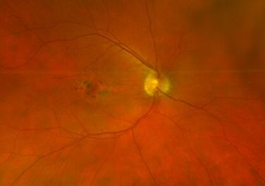 Retina 54-1.png