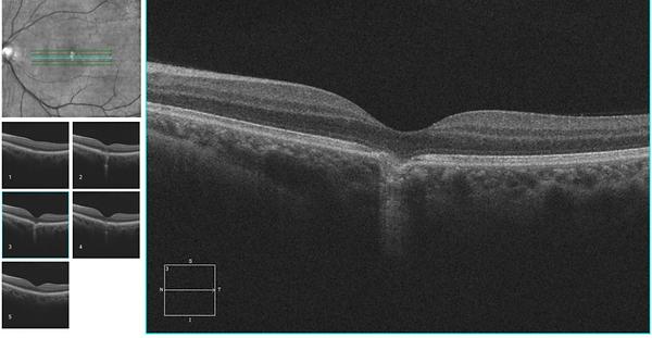 Retina 44-1.png