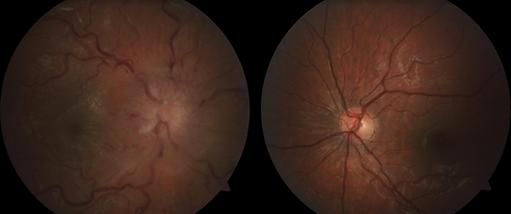 Retina 8-1.png