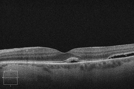 Retina 35-4.png
