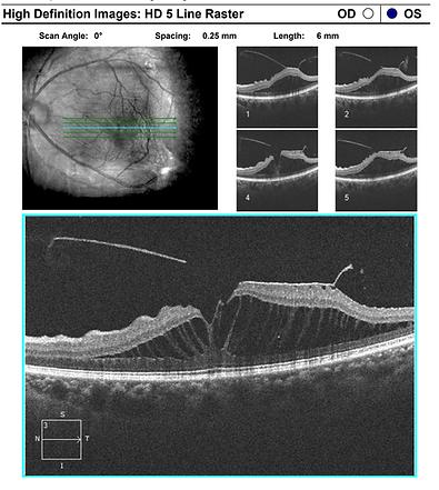 Retina 34-1.png