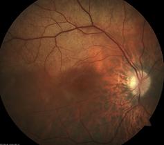 Retina Case 7-1.png