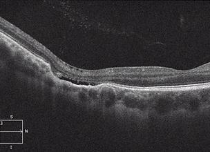 Retina 38-4.png