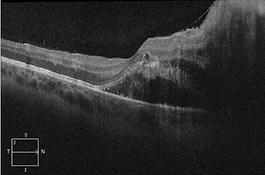 Retina 8-2.png