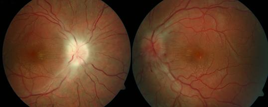 Retina 28-1.png