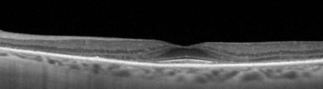 Retina 13-1.png