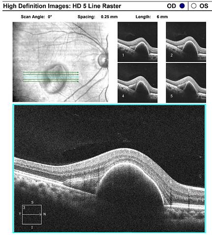 Retina 30-3.png