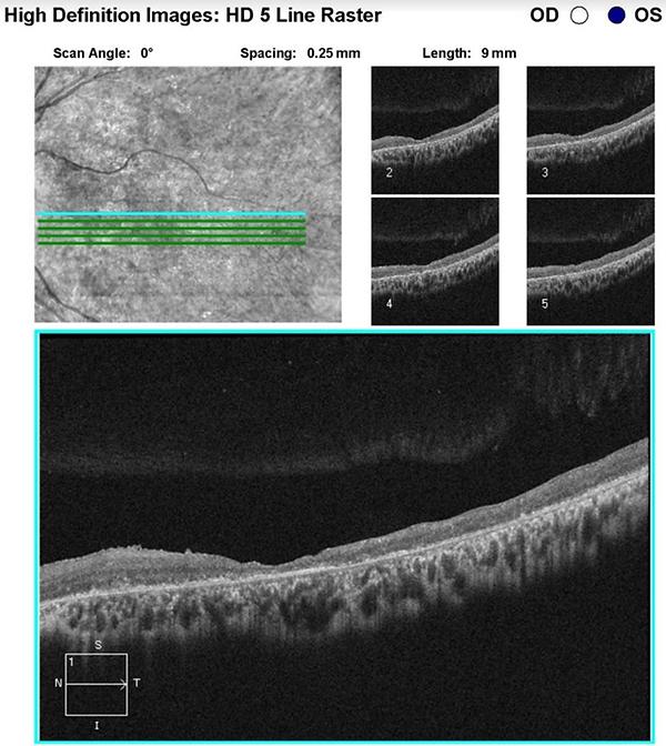 retina49_5.png