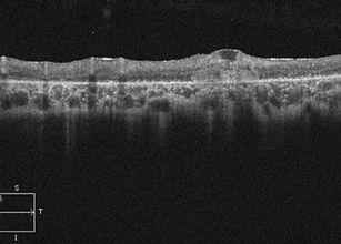 retina49_3_edited.jpg