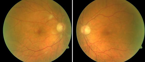 Neuro-Ophthalmology 14-1.png