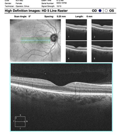 Neuro-Ophthalmology 13-10.png