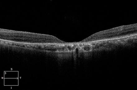 Retina 20-1.png