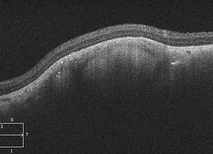 Retina 36-4.png