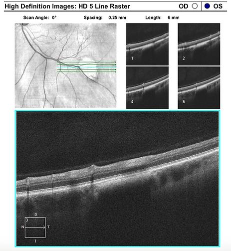 Retina 37-2.png