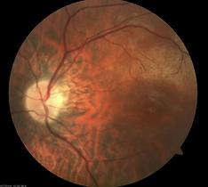 Retina Case 7-2.png
