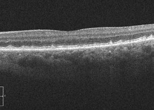 retina56_2.png