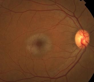 Retina 22-1.png