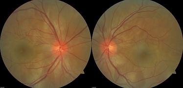 Retina 14-1.png
