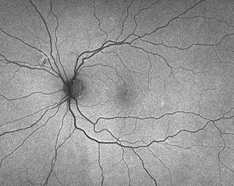 retina56_11.png