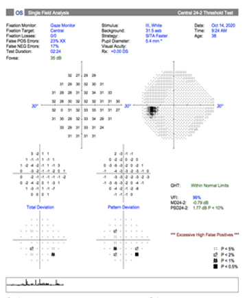 Neuro-Ophthalmology 13-1.png