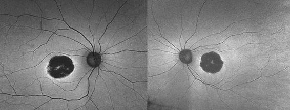 Retina 27-2.png