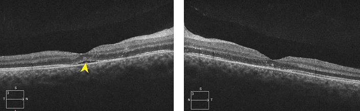 Retina 28-6.png