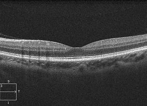 Retina 39-5.png