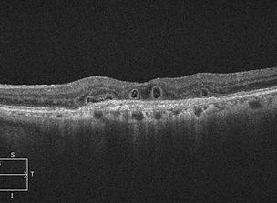 Retina 32-5.png
