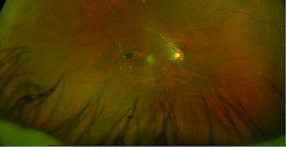 Retina 38-1.png