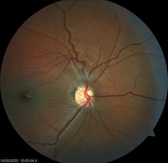 Neuro-Ophthalmology 11-5.png